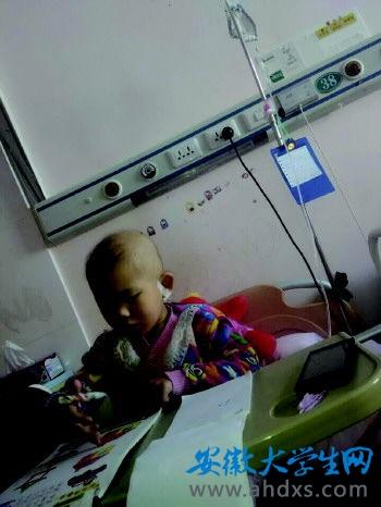 化疗后的郭禹琪,头发已经掉光。(图片由潍坊学院学生提供)